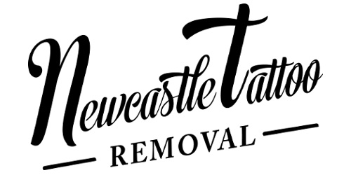 Newcastle Tattoo Removal
